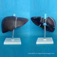 Modelo de Anatomia do Fígado Humano com Base para Ensino Médico (R100102)