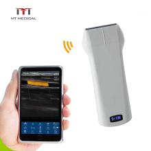 Newest 192 Elements Color Doppler Linear Probe Wireless Portable Mini Ultrasound Machine