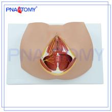 Modèle avancé de périnée de PNT-0361 femelle, modèle reproducteur anatomique d'organe