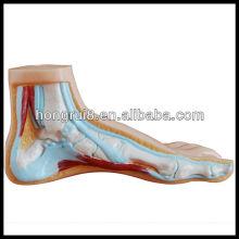ISO Modèle de pied normal, plat et arqué, modèle anatomique