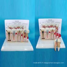 Anatomie des dents pathologiques Modèle de soins dentaires pour l'enseignement (R080119)