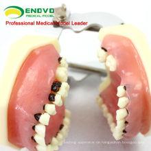 Parodontalkrankheiten für Erwachsene Modell f / Behandlung parodontaler Erkrankungen 12610