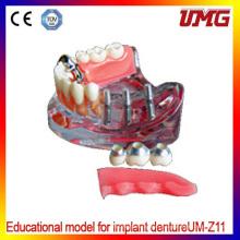 Dental Teeth Models and Implants Communication Model for Dentist
