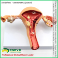 SELL 12441 Female Uterus Show Common Pathologies Anatomy Models