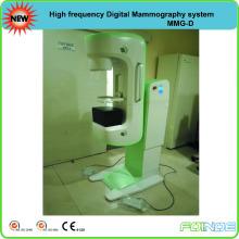 Máquina de mamografia digital de alta freqüência com CE