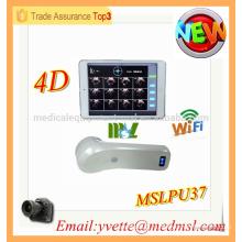 MSLPU37M 2016 High Tech 4D Scanner à vessie sans fil Scanner à vessie Protable à ultrasons prix machine