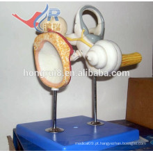 Modelo de orelha interna ISO com ossículos auditivos e membrana timpânica