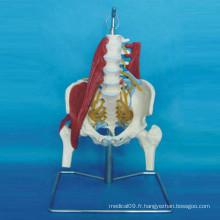 Modèle d'anatomie du pelvis naturel humain avec muscle neurologique pathologique
