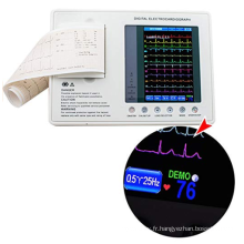 Prix de la machine ECG numérique hôpital