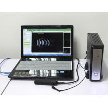 équipement ophtalmique scanner AB