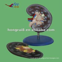 Modelo de anatomia do rim humano ISO 2012 (2 partes), modelo de função de anatomia HR-310-2