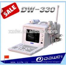 ultrasound devices portable&ultrasonic diagnsotic systems&medical equipment ultrasound DW330
