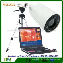 MSLEC01i New Tech Medical colposcope numérique / colposcope vidéo vagin