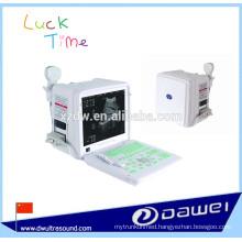 portable ultrasound machine price & portable sonography scanner