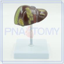 PNT-0752 Human liver cancel model, liver disease model,liver cancel