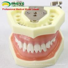 SELL 12563 Modèle Anatomique Type d'étude dentaire avec gomme souple