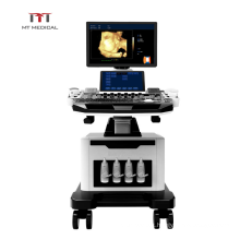High Specification Double Screen Mobile Medical 4D Color Doppler Ultrasound Trolley Machine