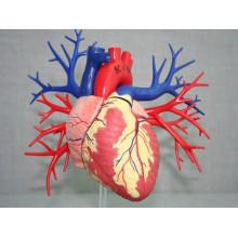 Impresión 3d de piezas médicas