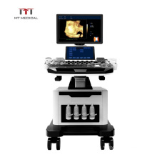 ultrasound machine/Hand-carried Portable Color Doppler  trolley Ultrasound machine