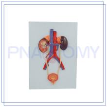 PNT-0568 vente chaude modèle de soulagement du système urinaire