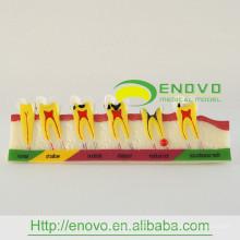 Carie de démonstration pour adultes EN-M7 développant un modèle de dent pour l'éducation