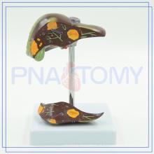 Fígado PNT-0752 e modelo doente da vesícula biliar