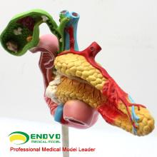 VISCERA04 (12541) Modèle pathologique en science médicale du pancréas, du duodénum et de la vésicule biliaire