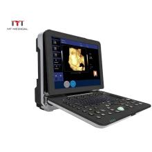 Ultrasound Machine Suppliers 128 Elements Color Doppler 3D 4D Cardiac Usg Portable Ultrasound Price