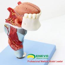 THROAT02 (12506) Modèle Larynx avec Toungue et Dents, Agrandir l'image, 5 Pièces, Modèles ORL> Modèles Larynx