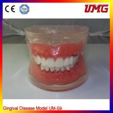 Dental Teaching Model for Gingival Disease Model