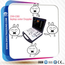 Durable portable ultrasound for human use, laptop color Doppler Welcome your enquiry!
