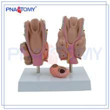 PNT-0757 Modelo de doença da tiróide, modelo da tiróide, modelo de anatomia da tiróide