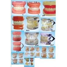Equipamento de Educação em Ciência Oral Dentição Padrão Modelo de Dente Modelo