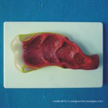 Медицинская модель ректального рака человека (R100206)