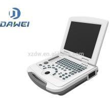 DW-580 échographe de dialyse à vendre avec certificat CE