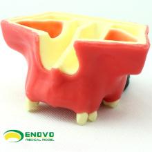 IMPLANT07(12615) Стоматологическая Лифт модели синус практика используется для занятий