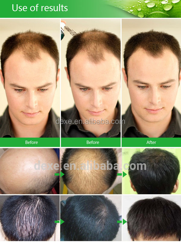 2019 Hot Sale Best Selling,Hair lose treatment Anti Hair Losing Treatment Instantly Hair Growth spray for man