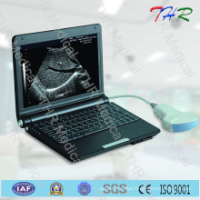Laptop Full Digital Ultrasound Scanner (THR-LT003)