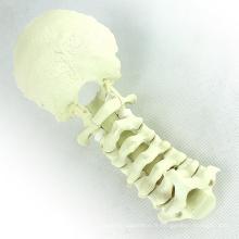TF11 (12322) Modèles orthopédiques d'anatomie normale Colonne vertébrale cervicale avec Occipital