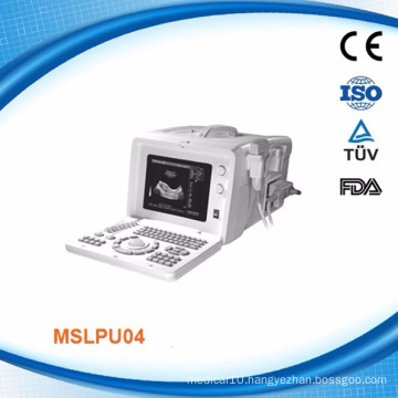 Factory price professional portable echo ultrasound price