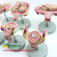 ANATOMY12(12450) Classic Pregnancy 8-Model Series Set, Anatomy Female Pregnancy Models 12450