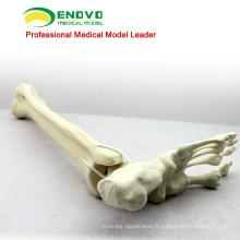 GROSSE SIMULATION OS 12317 Tibia artificiel d'anatomie médicale avec l'os de pied, os de simulation de pratique d'orthopédie