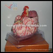 Modelo de artéria cerebral ISO, modelo de anatomia do cérebro