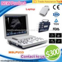 MSLPU33-I ordinateur portable B / W machines à ultrasons pour le test de grossesse avec de bonnes images