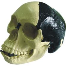 Medizinisches Anatomisches Modell Bill Toledo Menschlicher Schädel