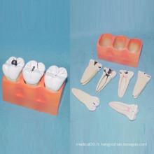 Modèle d'anatomie des dents dentaires humaines pour l'enseignement (R080117)