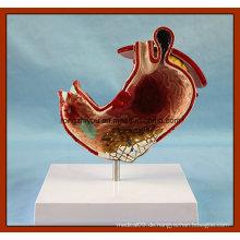 Menschlicher Magen mit Geschwüre Anatomisches Modell
