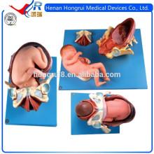 Processus de livraison ISO du terme Fetus, Simulateurs d'accouchement