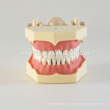 32 pcs dents amovibles Soft Gum enseignement dentaire modèle 13008, dents de rechange Siut pour Frasaco mâchoire