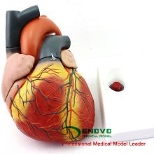 HEART11 (12487) Novo Modelo de Anatomia do Coração de tamanho grande com tamanho 4x dividido em 4 partes